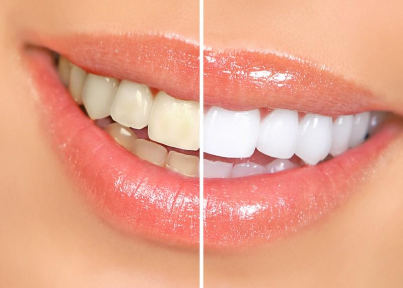 Teeth Whitening  Nashville, TN
